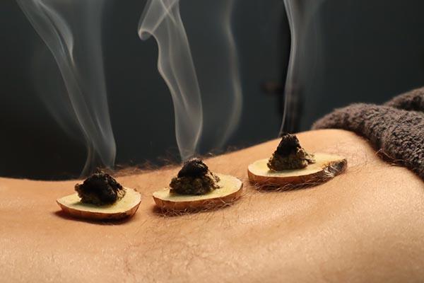 Benefits of Moxibustion